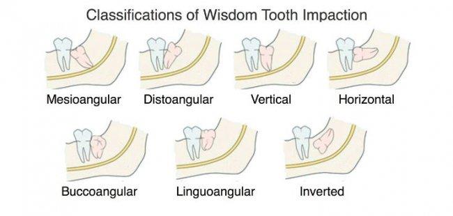 Wisdom Tooth Surgery Emad Dental Clinic