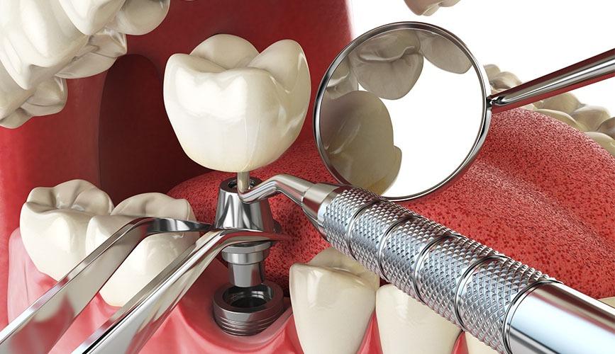 تعرف على أنواع الزرعات السنية عيادة عماد لطب الأسنان